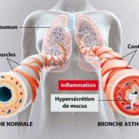 Cycliste et asthmatique
